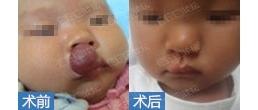 婴儿唇部毛细血管瘤