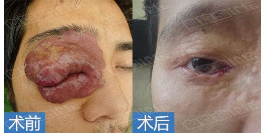 成人眼部混合型血管瘤病例