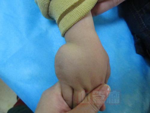 我家宝宝胳膊上有血管瘤,怎么治疗才好,之前摸过五景眼药水,药膏...._血管瘤论坛-中国血管瘤患者之家