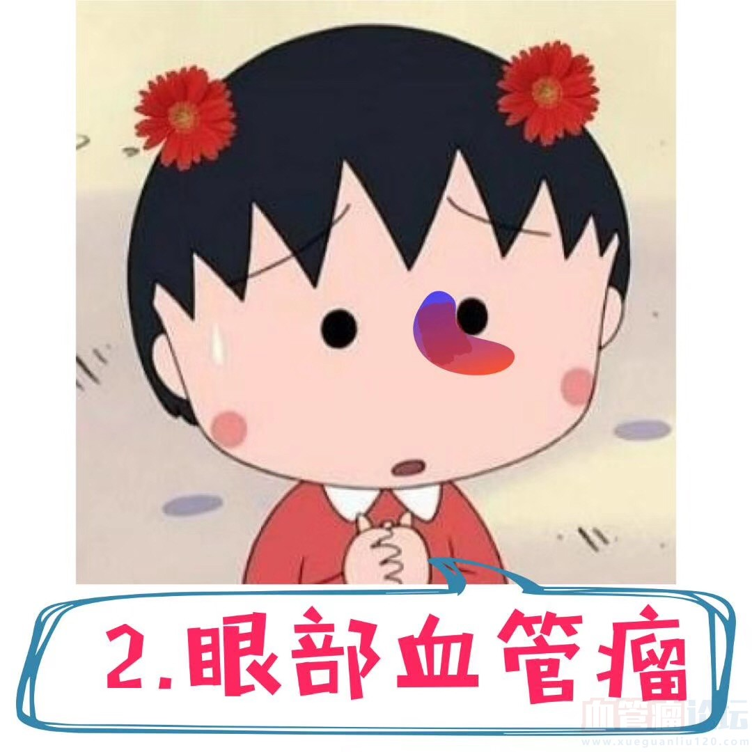 血管瘤长在眼睛周围怎么办?_血管瘤论坛-中国血管瘤患者之家