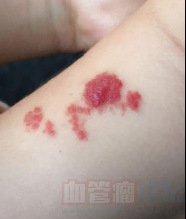 这种是什么类型的血管瘤?需要这么治疗?不想给她用激光_血管瘤论坛-中国血管瘤患者之家