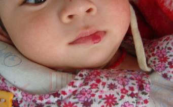 我家孩子这个嘴唇血管瘤光涂眼药水或者药可不可以_血管瘤论坛-中国血管瘤患者之家