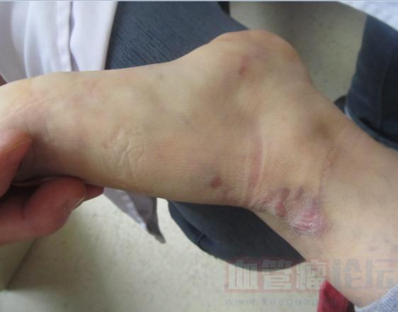 宝宝脚上长了血管瘤复发了咋办?_血管瘤论坛-中国血管瘤患者之家