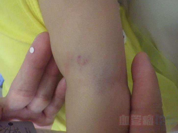 不手术能治疗海绵状血管瘤吗?_血管瘤论坛-中国血管瘤患者之家