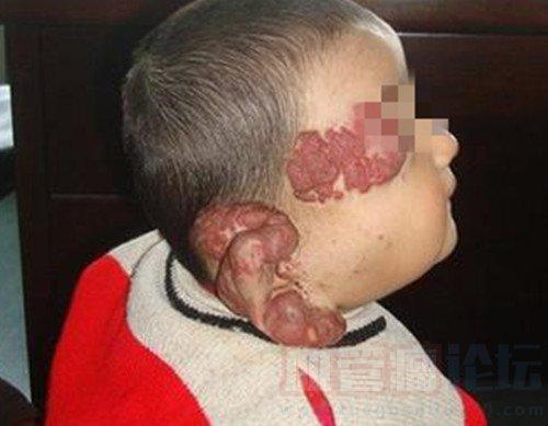 解读毛细血管瘤会带来哪些危害?_血管瘤论坛-中国血管瘤患者之家