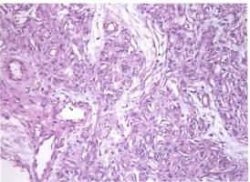 梭形细胞血管内皮瘤(一)_血管瘤论坛-中国血管瘤患者之家