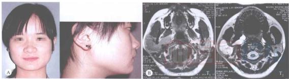 静脉畸形的治疗_血管瘤论坛-中国血管瘤患者之家