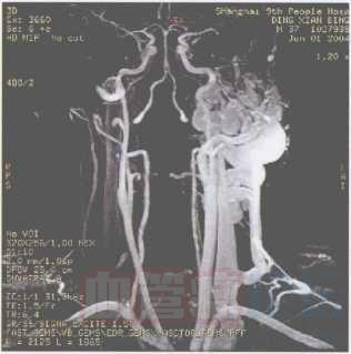动静脉血管瘤(动静脉畸形)_血管瘤论坛-中国血管瘤患者之家