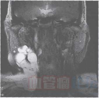 淋巴管畸形_血管瘤论坛-中国血管瘤患者之家