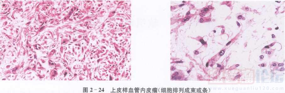 上皮样血管内皮瘤_血管瘤论坛-中国血管瘤患者之家