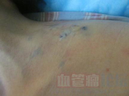 多发性海绵状血管瘤有什么表现?_血管瘤论坛-中国血管瘤患者之家