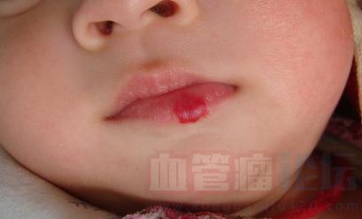 草莓状血管瘤会不会消退?它与胎记如何区别?_血管瘤论坛-中国血管瘤患者之家