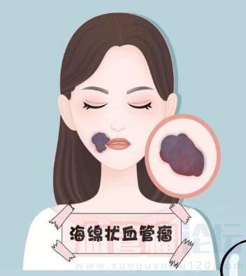 海绵状血管瘤的危害都有些什么?_血管瘤论坛-中国血管瘤患者之家