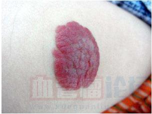 草莓状血管瘤的主要治疗方法有哪些?_血管瘤论坛-中国血管瘤患者之家
