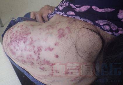 血管瘤患者会有哪些症状?_血管瘤论坛-中国血管瘤患者之家