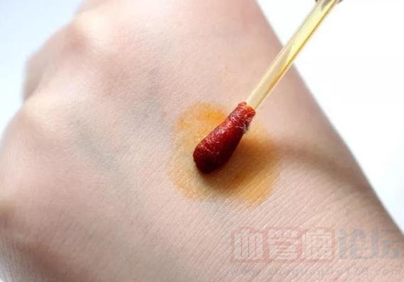 幼儿会阴部血管瘤破溃如何处理?_血管瘤论坛-中国血管瘤患者之家