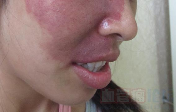 鲜红斑痣的特征及危害_血管瘤论坛-中国血管瘤患者之家