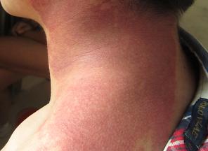 鲜红斑痣的治疗方法有哪些?怎样护理好?_血管瘤论坛-中国血管瘤患者之家