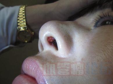 鼻血管瘤如何诊断?_血管瘤论坛-中国血管瘤患者之家