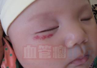 婴儿眼部血管瘤的危害有哪些_血管瘤论坛-中国血管瘤患者之家