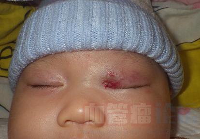 眼部血管瘤形成的原因_血管瘤论坛-中国血管瘤患者之家