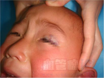 眼部血管瘤的危害及常见类型_血管瘤论坛-中国血管瘤患者之家