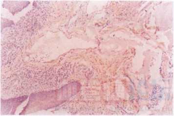 病理检查血管瘤的特点_血管瘤论坛-中国血管瘤患者之家