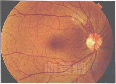 视网膜蔓状血管瘤_血管瘤论坛-中国血管瘤患者之家