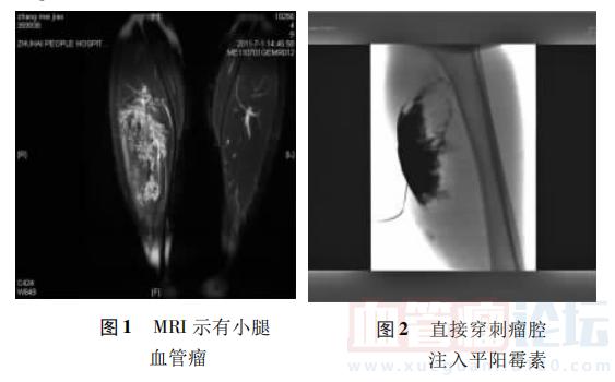 动脉栓塞联合平阳霉素瘤腔内注射治疗小儿肢体血管瘤的临床观察 ..._血管瘤论坛-中国血管瘤患者之家