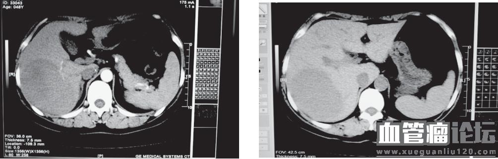 肝原发性非霍奇金淋巴瘤误诊为肝血管瘤1例临床分析_血管瘤论坛-中国血管瘤患者之家