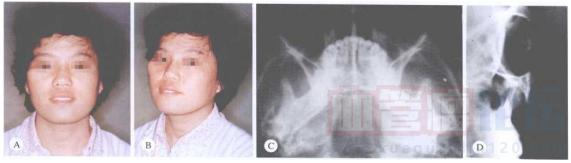 你知道血管瘤的病因有哪些吗?_血管瘤论坛-中国血管瘤患者之家