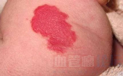 婴儿血管瘤破裂了怎么办?_血管瘤论坛-中国血管瘤患者之家