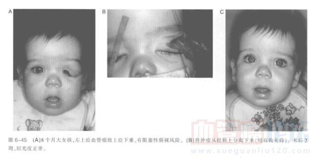 上睑血管瘤切除指南_血管瘤论坛-中国血管瘤患者之家