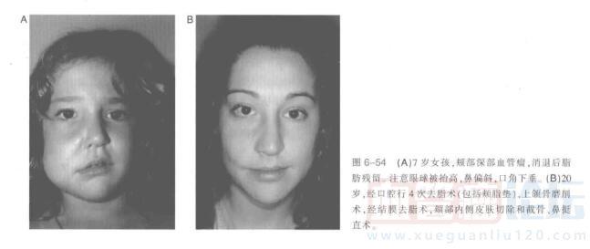颊部血管瘤切除指南_血管瘤论坛-中国血管瘤患者之家