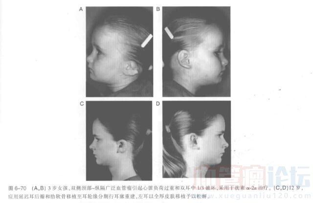 耳部血管瘤切除指南_血管瘤论坛-中国血管瘤患者之家