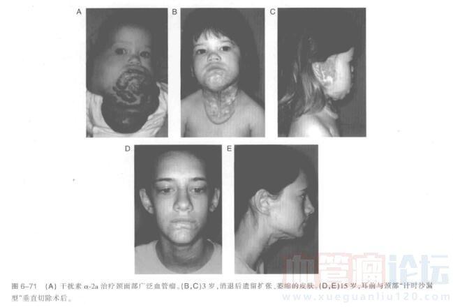 颈部血管瘤切除指南_血管瘤论坛-中国血管瘤患者之家