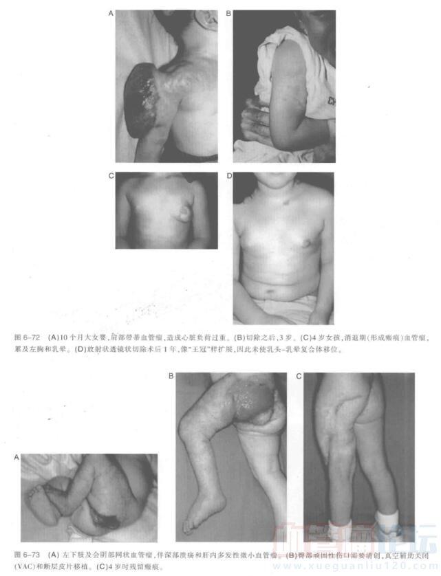 躯干及四肢血管瘤切除指南_血管瘤论坛-中国血管瘤患者之家