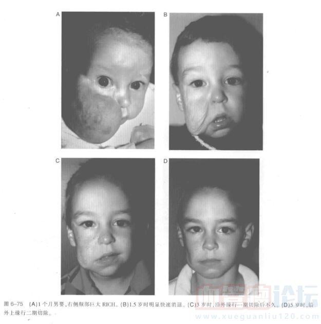 先天性(胎儿)血管瘤的处理_血管瘤论坛-中国血管瘤患者之家
