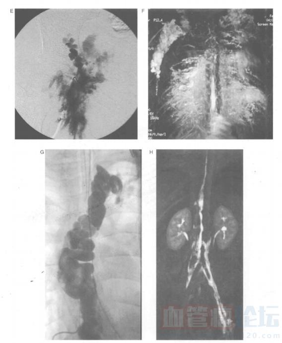 低流速脉管畸形的影像学表现-磁共振成像_血管瘤论坛-中国血管瘤患者之家