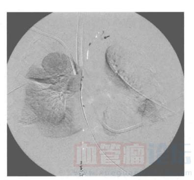 低流速脉管畸形的影像学表现-常规淋巴管造影_血管瘤论坛-中国血管瘤患者之家