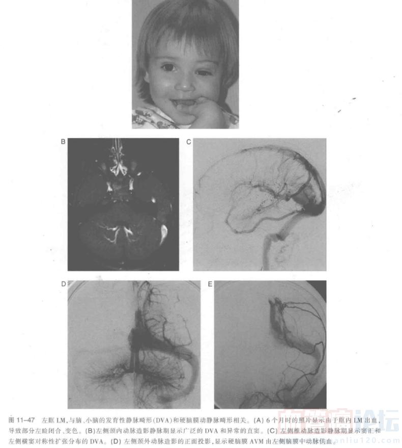 低流速脉管畸形的影像学表现-淋巴管畸形的亚型_血管瘤论坛-中国血管瘤患者之家