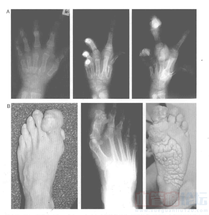 低流速混合型脉管畸形——Proteus综合征_血管瘤论坛-中国血管瘤患者之家