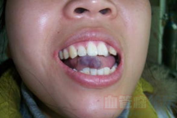 女性出现血管瘤的病因是什么?_血管瘤论坛-中国血管瘤患者之家