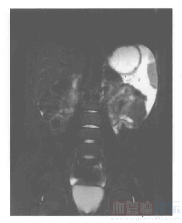腹腔和骨盆脉管畸形——淋巴管畸形(一)_血管瘤论坛-中国血管瘤患者之家
