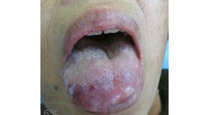 舌头上血管瘤症状及其危害_血管瘤论坛-中国血管瘤患者之家