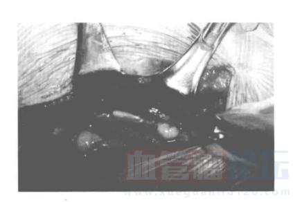 原发性淋巴水肿——发病机制_血管瘤论坛-中国血管瘤患者之家