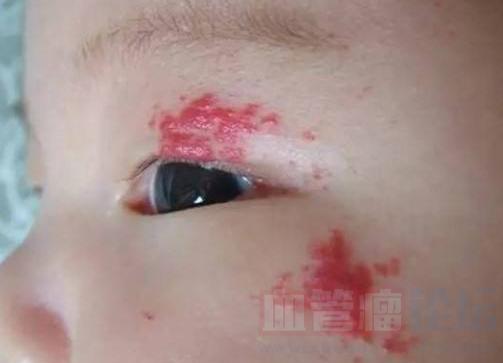 血管瘤对儿童的危害性要引起家长反省_血管瘤论坛-中国血管瘤患者之家