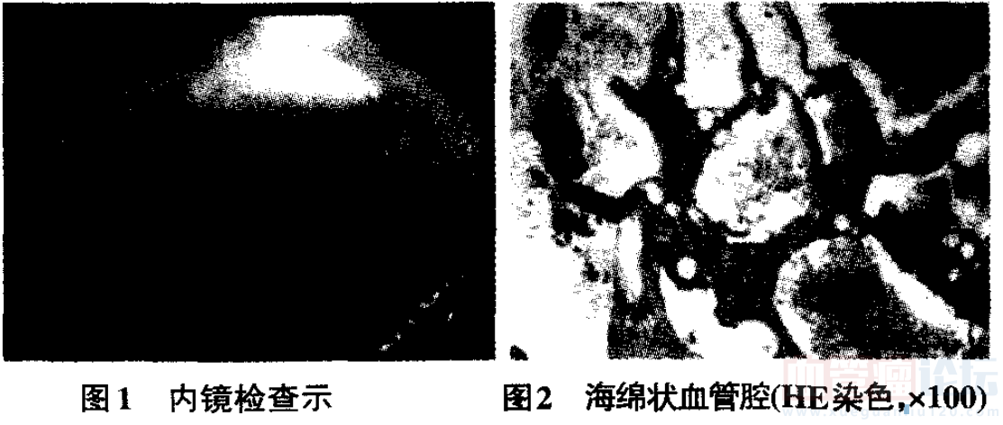 十二指肠降部血管瘤一例并文献复习_血管瘤论坛-中国血管瘤患者之家
