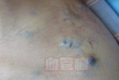 海绵状血管瘤的硬化治疗_血管瘤论坛-中国血管瘤患者之家