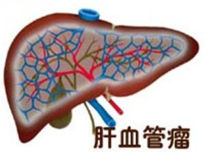 肝血管瘤的发病机制和发病原因_血管瘤论坛-中国血管瘤患者之家